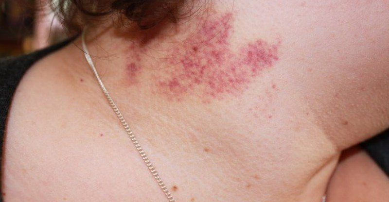 How To Remove Kiss Mark On Neck Fast - Howto Techno